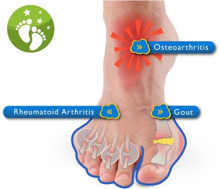 Arthritis in the Foot