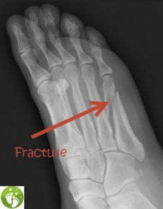 X-Ray Picture of a Foot Bone Fracture - 5th Metatarsal