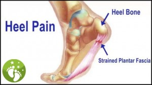 Heel Pain Caused by Plantar Fasciitis